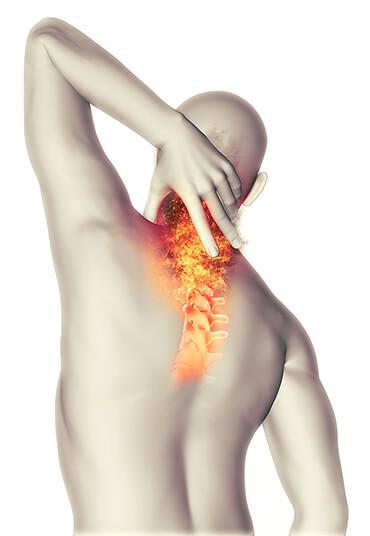 Rückenschmerzen durch eine Therapie & Schmerztherapie beim Radiologen entgegenwirken
